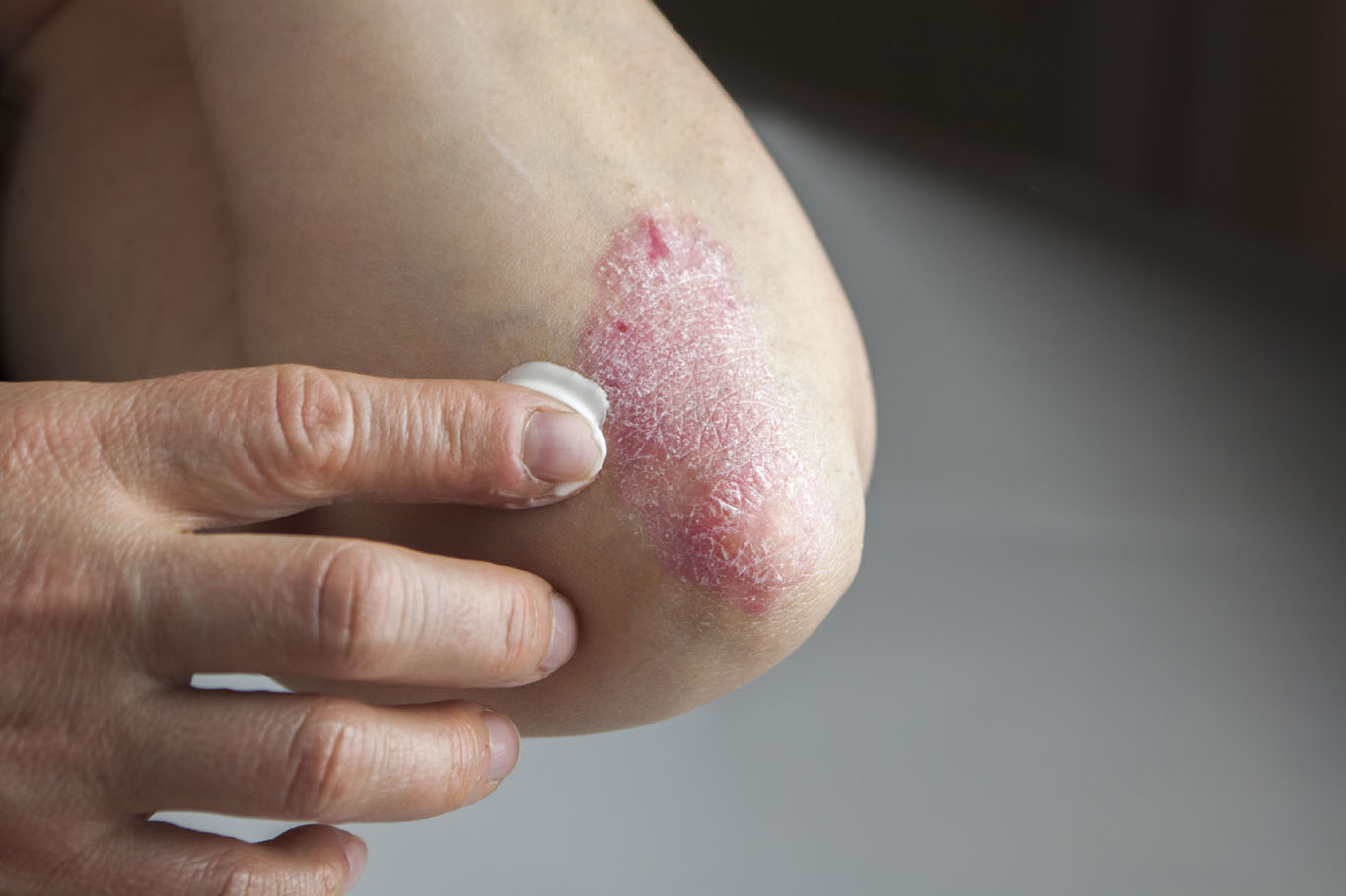 Close up of a person rubbing cream into psoriasis on their elbow