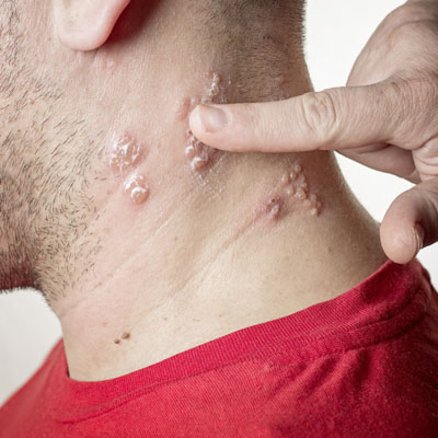 Close up of blisters on the side of a man's neck